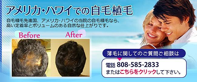 アメリカ ハワイでの自毛植毛
