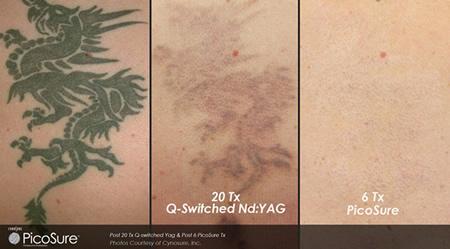 最新タトゥー除去レーザー PicoSure